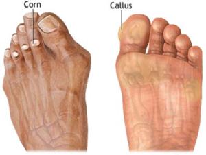 corn-callous-removal