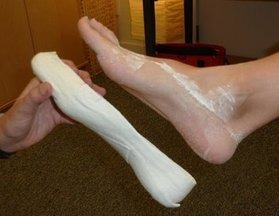 custom-made-foot-orthotics
