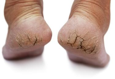 DRY CRACKED HEELS | Foot Medical Centre
