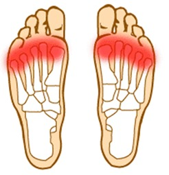 forefoot-pain