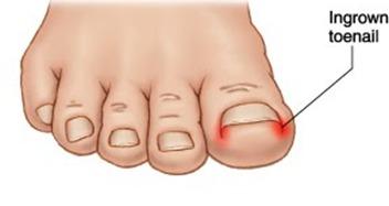 Ingrown Toenails Foot Medical Centre Aurora Foot